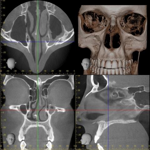 Accuitomo 170 10×10 Üst Çene Sinus