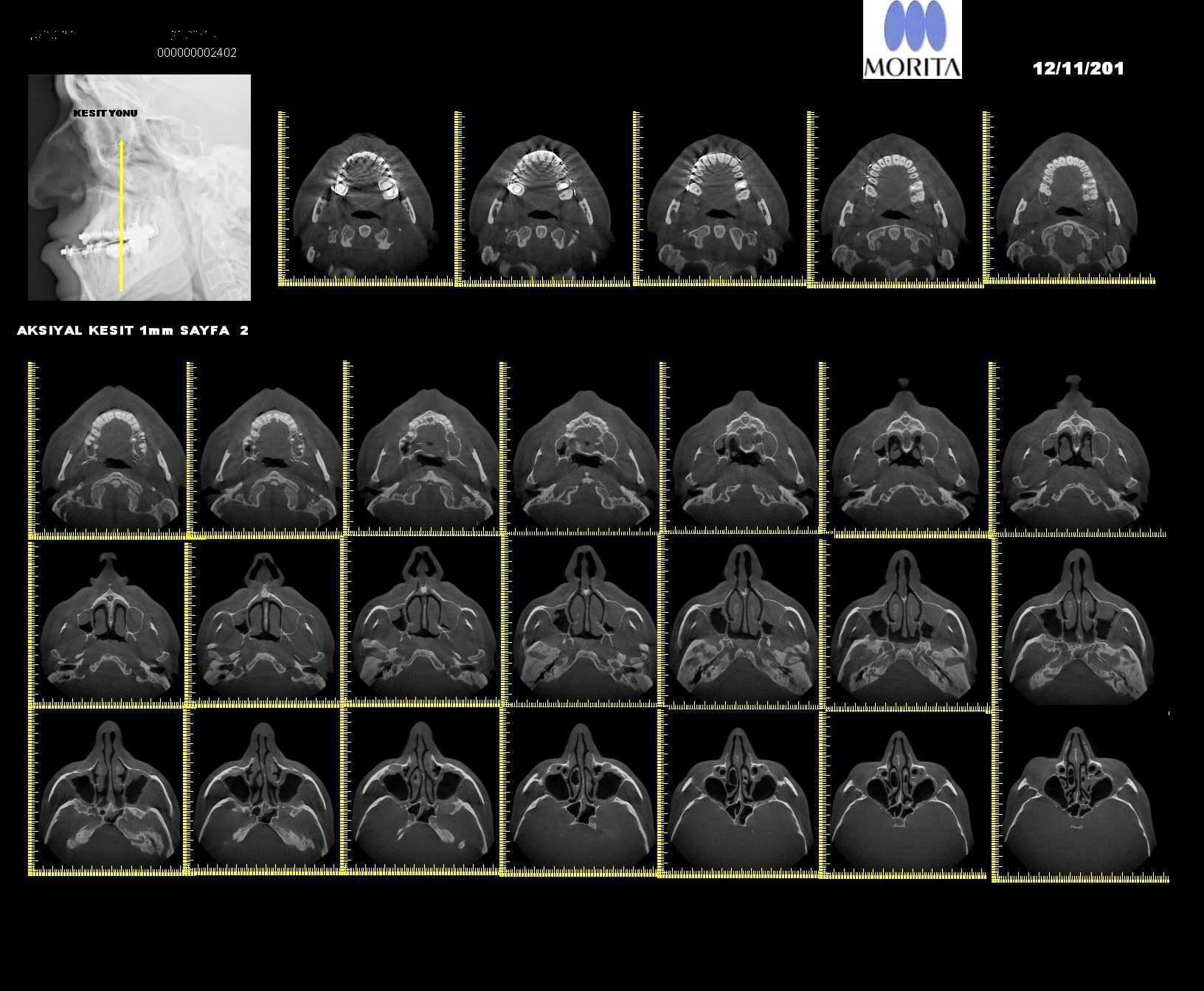 Accuitomo 170 Röntgen Aksiyel Kesitler