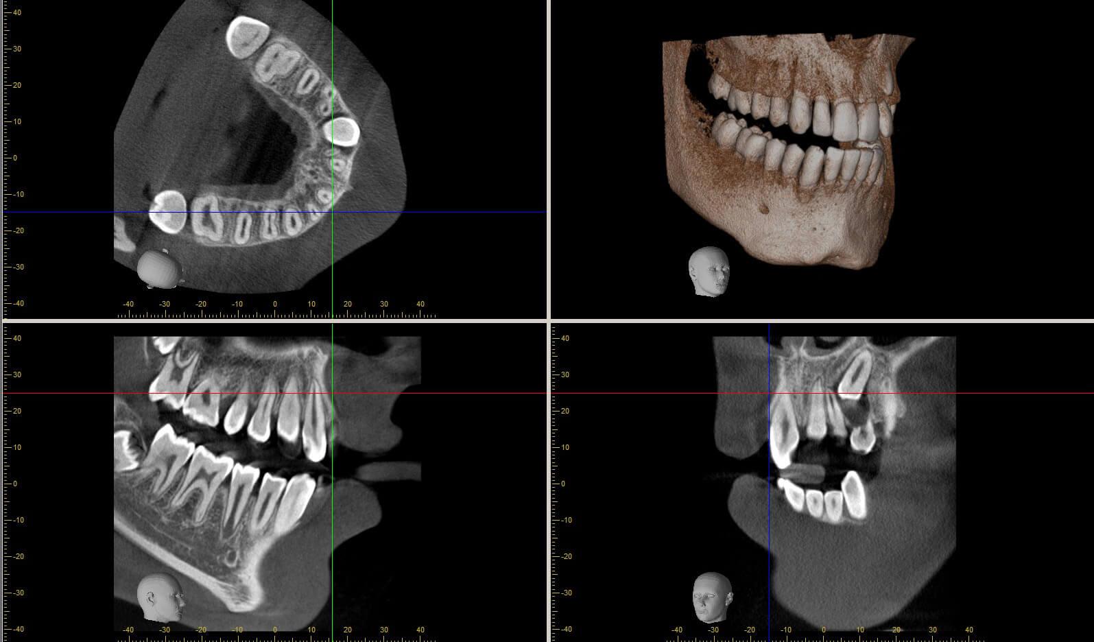 Morita R100 Tomografi 005