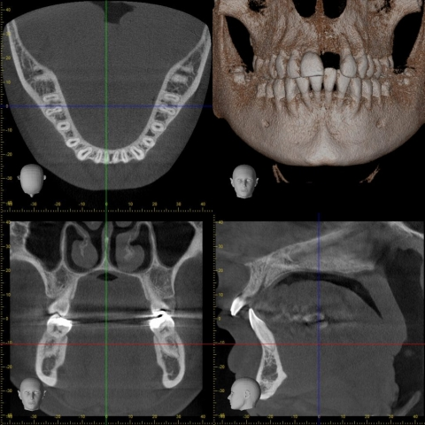 Morita R100 Tomografi 026