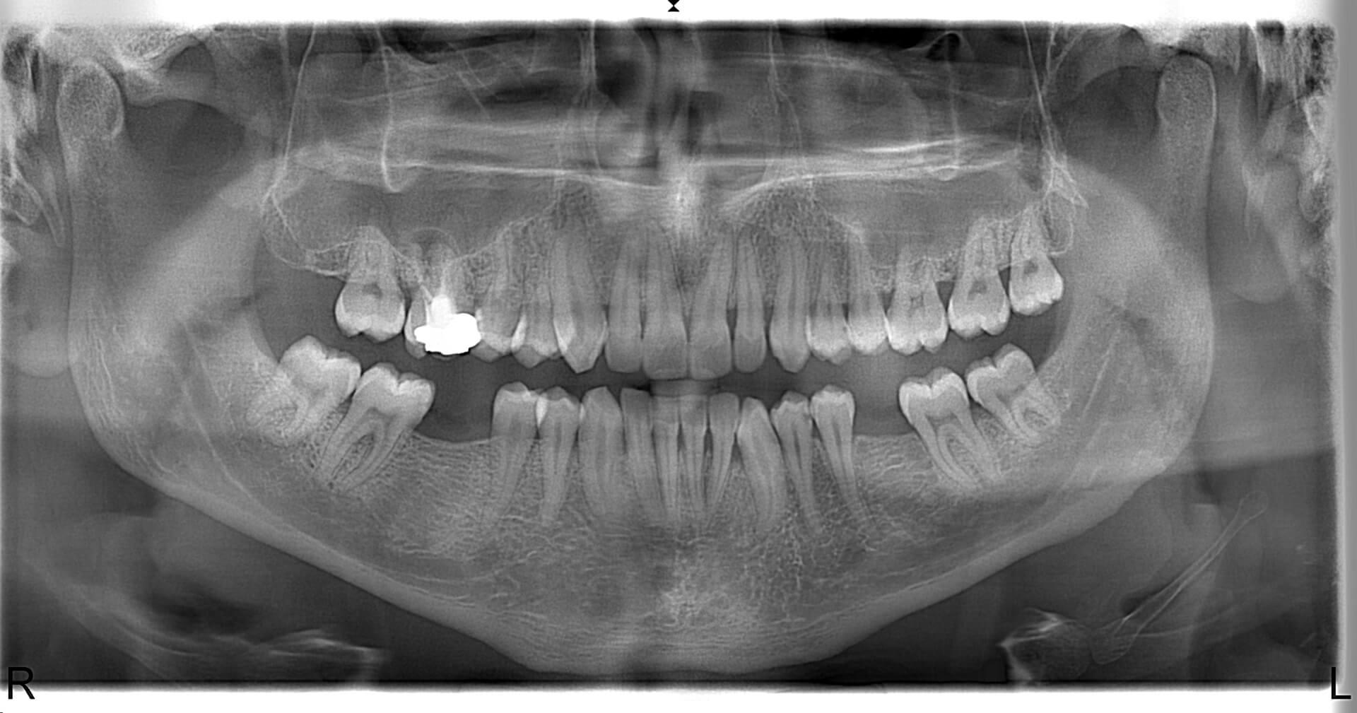 Örnek Panoramik Röntgen 15