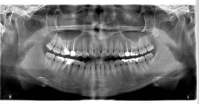 Örnek Panoramik Röntgen 18