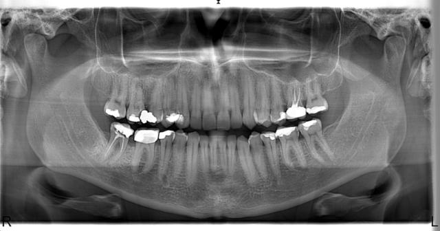 Örnek Panoramik Röntgen 20