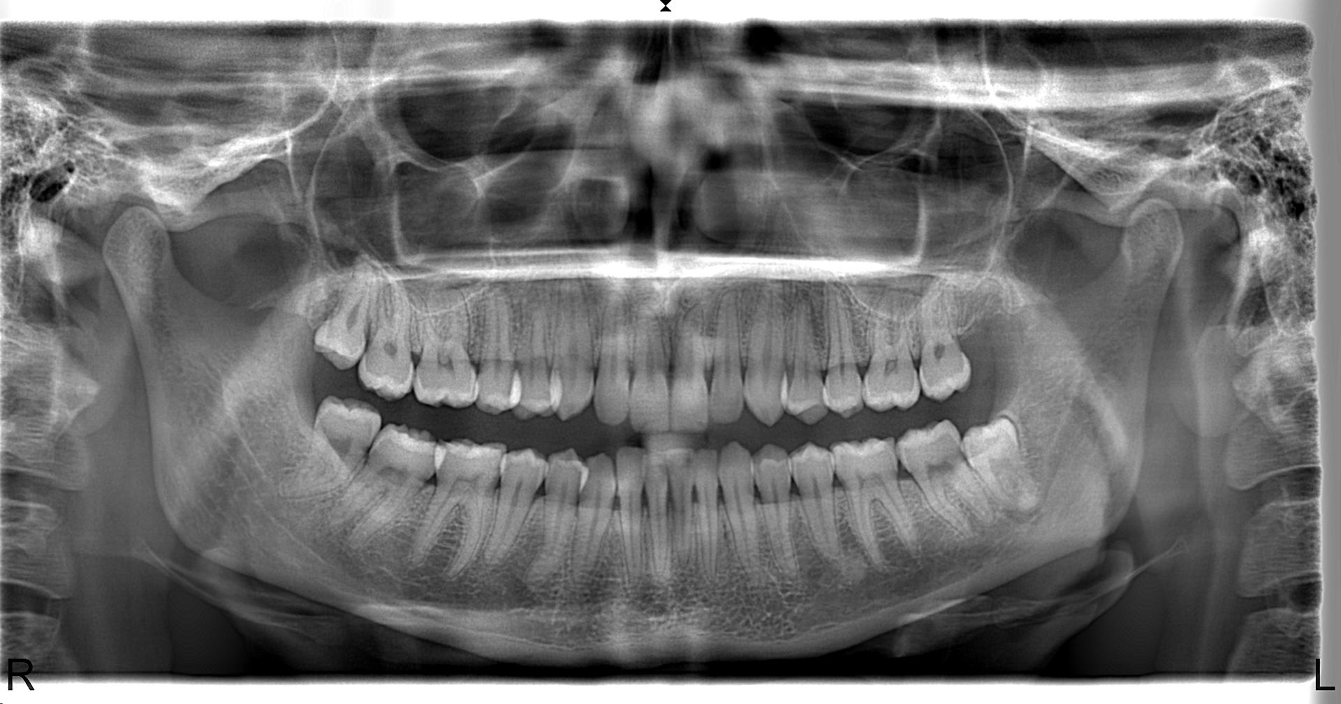 Panoramik Röntgen Örneği 09