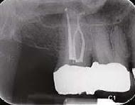Dental Radyoloji Cihazı Görüntüsü