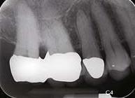 Dental Radyoloji Cihazları - Periapikal çekim