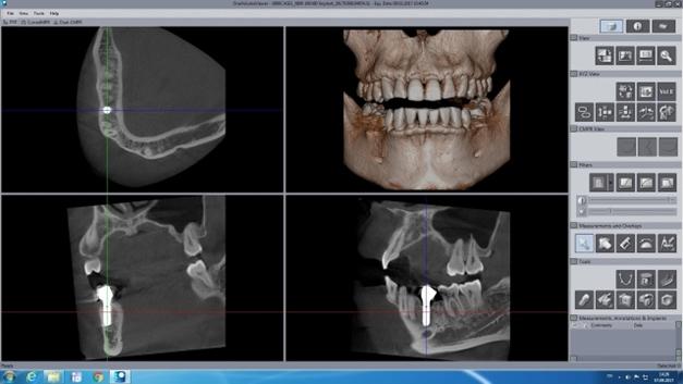 Koni Işınlı Bilgisayarlı Tomografi ile Implant Uygulaması