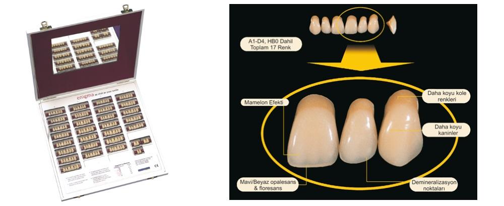 Enigma Protez Dişlerin Yapısı