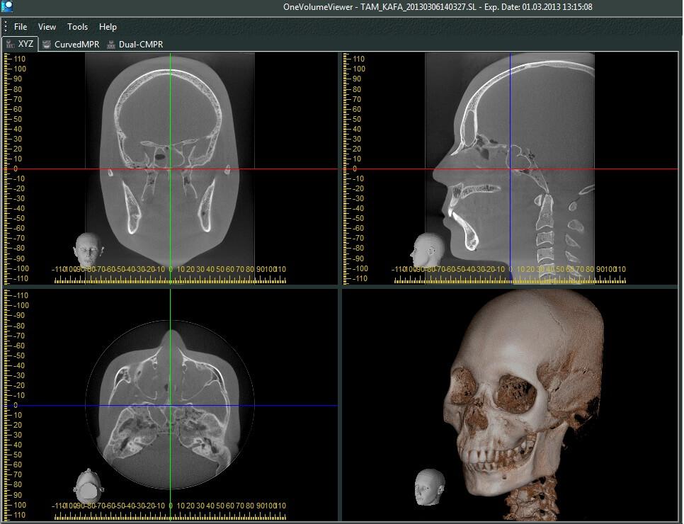 Accuitomo 170 17×23 Full Cranium Farkli Aci