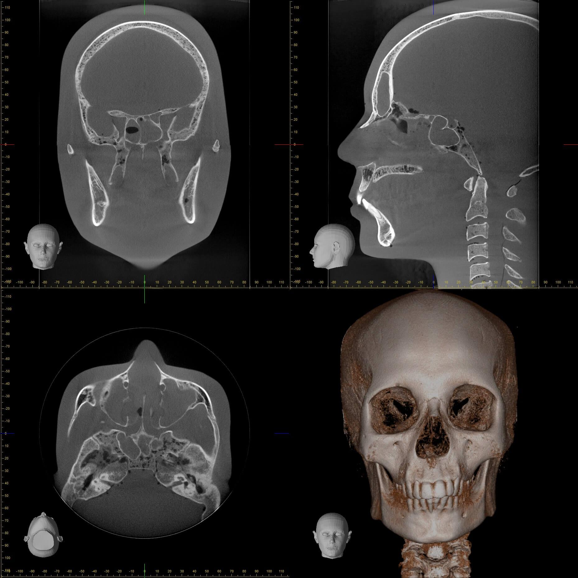 Accuitomo 170 17×23 Full Cranium