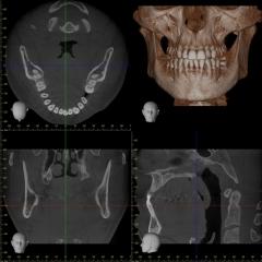 Accuitomo 170 Röntgen 14×10 Alt Üst Çeneler