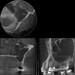 Accuitomo 170 Röntgen 60×60 Sinus