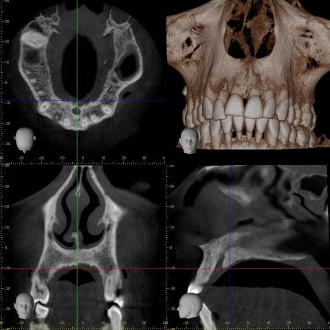 Accuitomo 170 Röntgen 8X8 Sinus