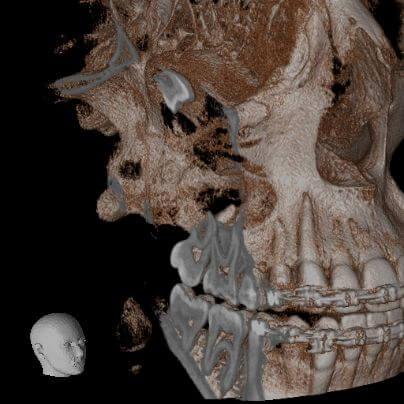 Accuitomo 170 Röntgen Hacim Kesme
