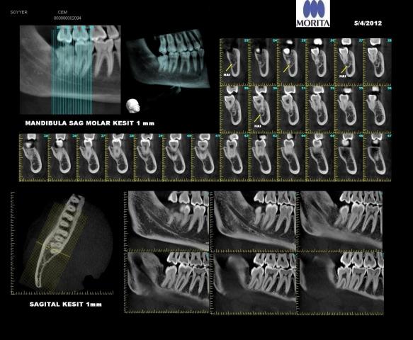Accuitomo 170 Röntgen İkili Mpr Sagital Koronal
