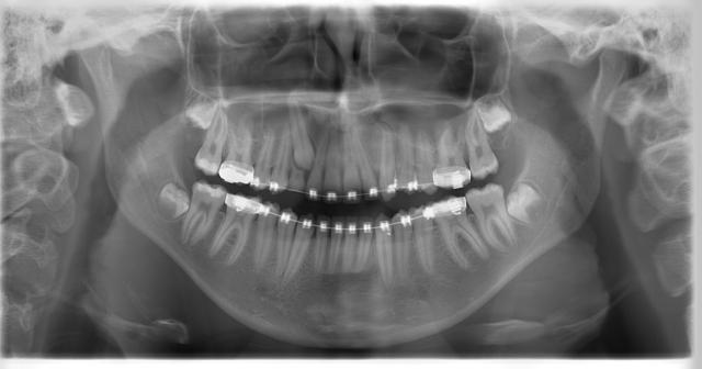 Morita 2dcp Ortodonti Röntgen