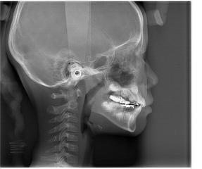 Morita 2dcp Sefalometrik Röntgen 1