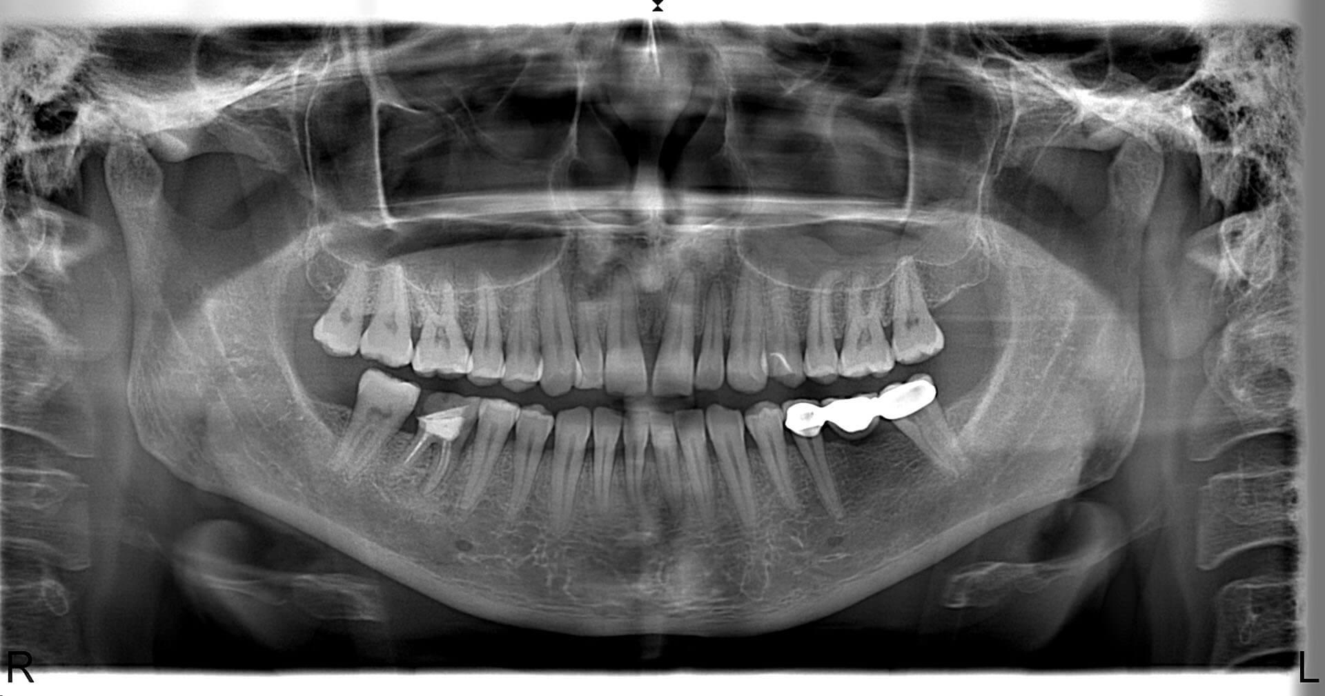 Morita İc5 Hd Panoramik Röntgen 1