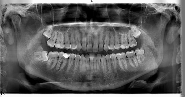 Örnek Panoramik Röntgen 16