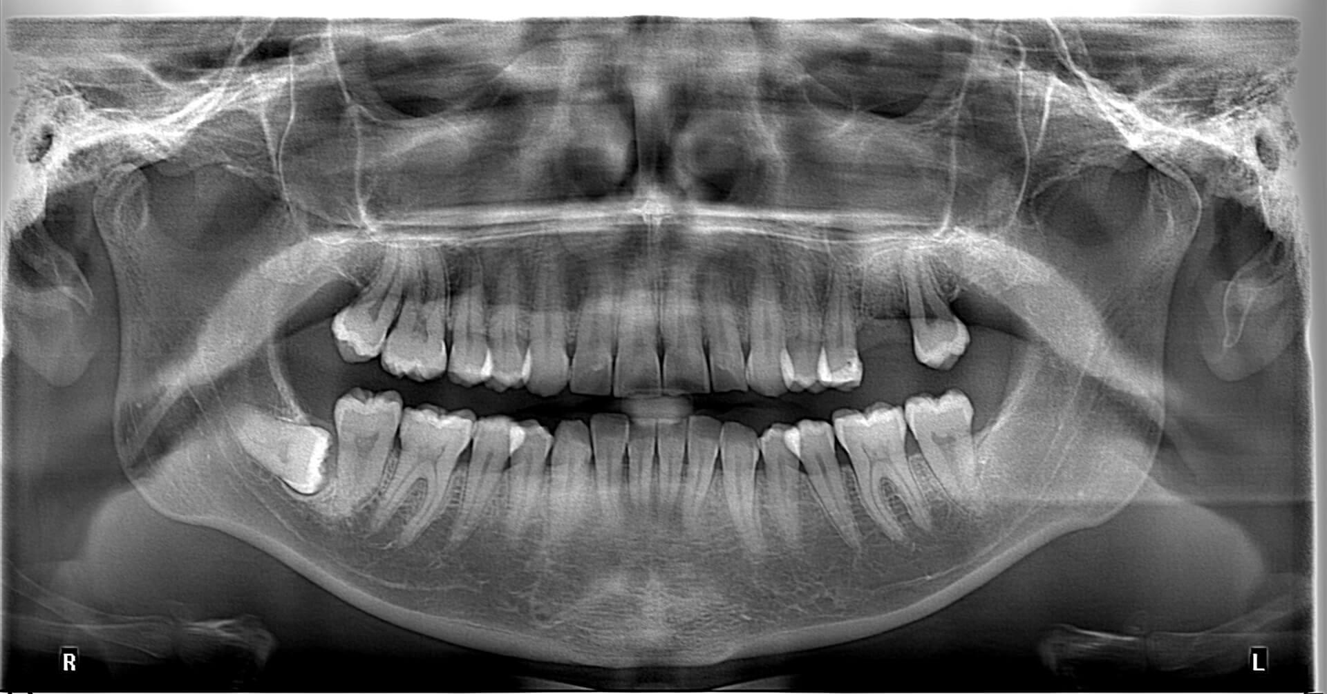 Örnek Panoramik Röntgen 17