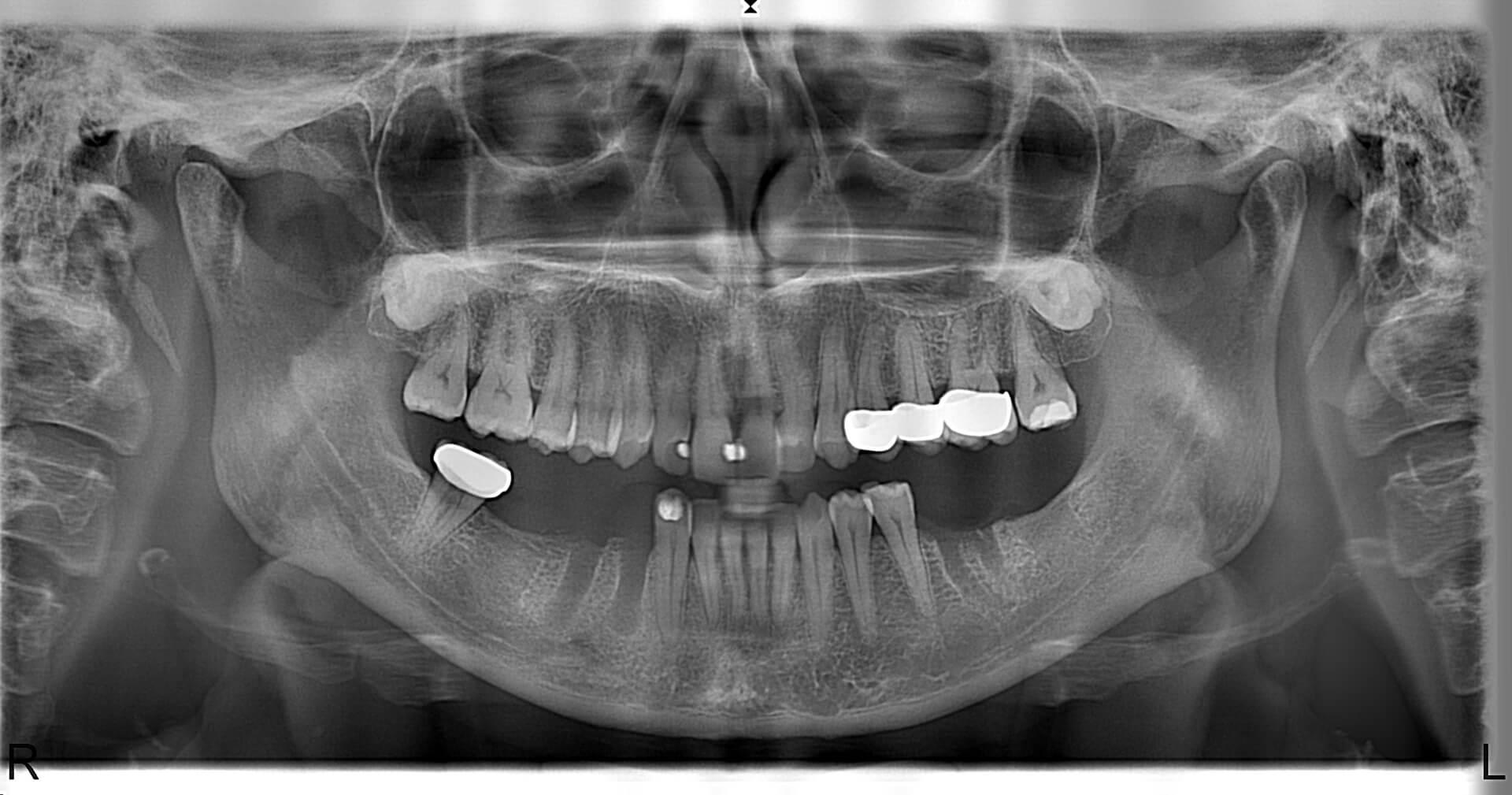 Örnek Panoramik Röntgen 19
