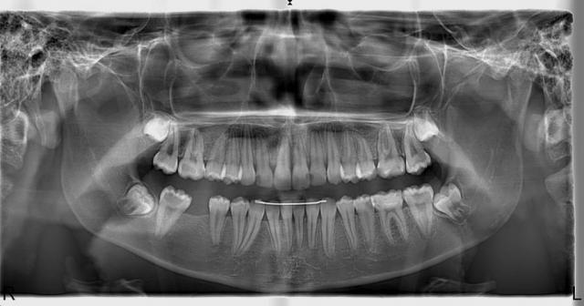 Panoramik Röntgen Örneği 10