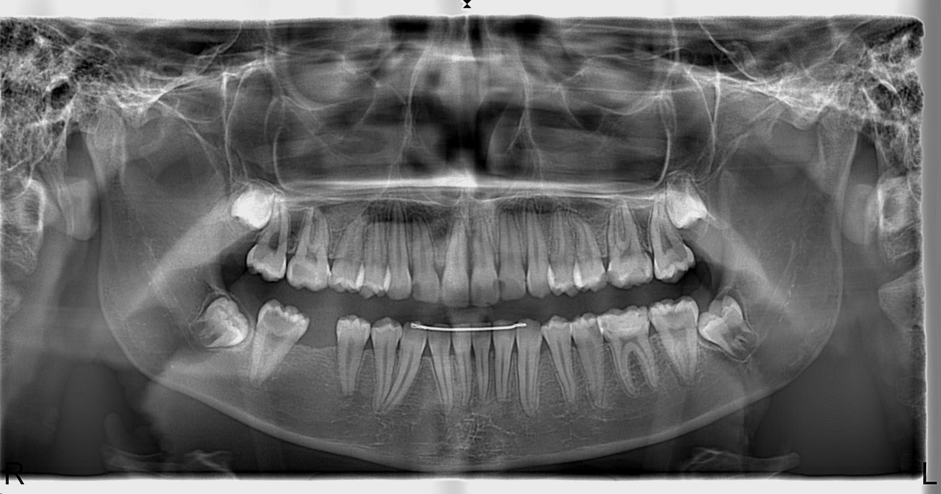 Panoramik Röntgen Örnegi 10