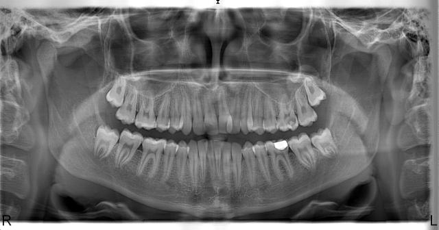 Panoramik Röntgen Örneği 11