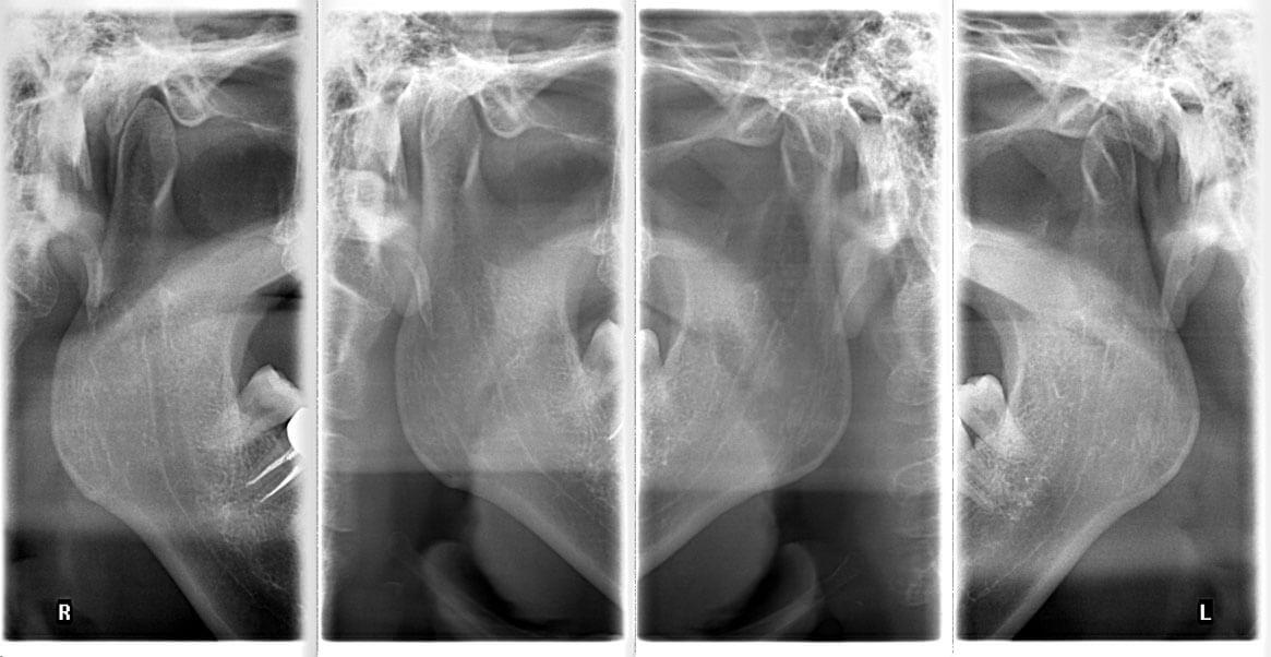 Veraview İc5 Tmj Röntgeni