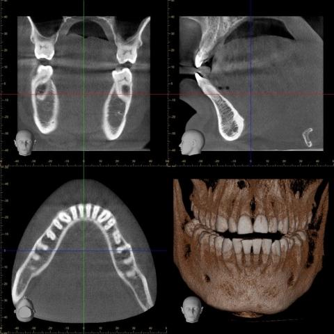 Veraviewepocs 10×8 Röntgen 2