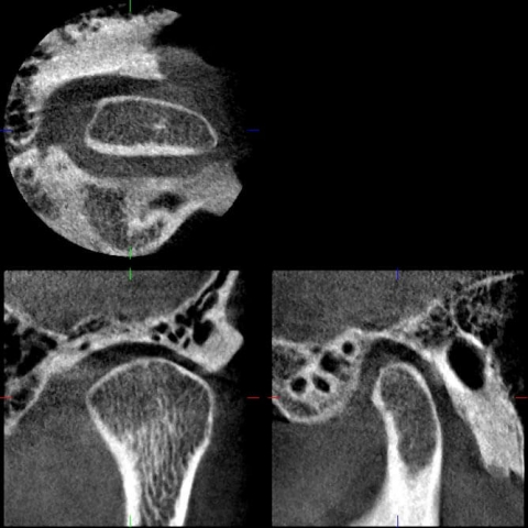 Veraviewepocs 3D Röntgen Tmj