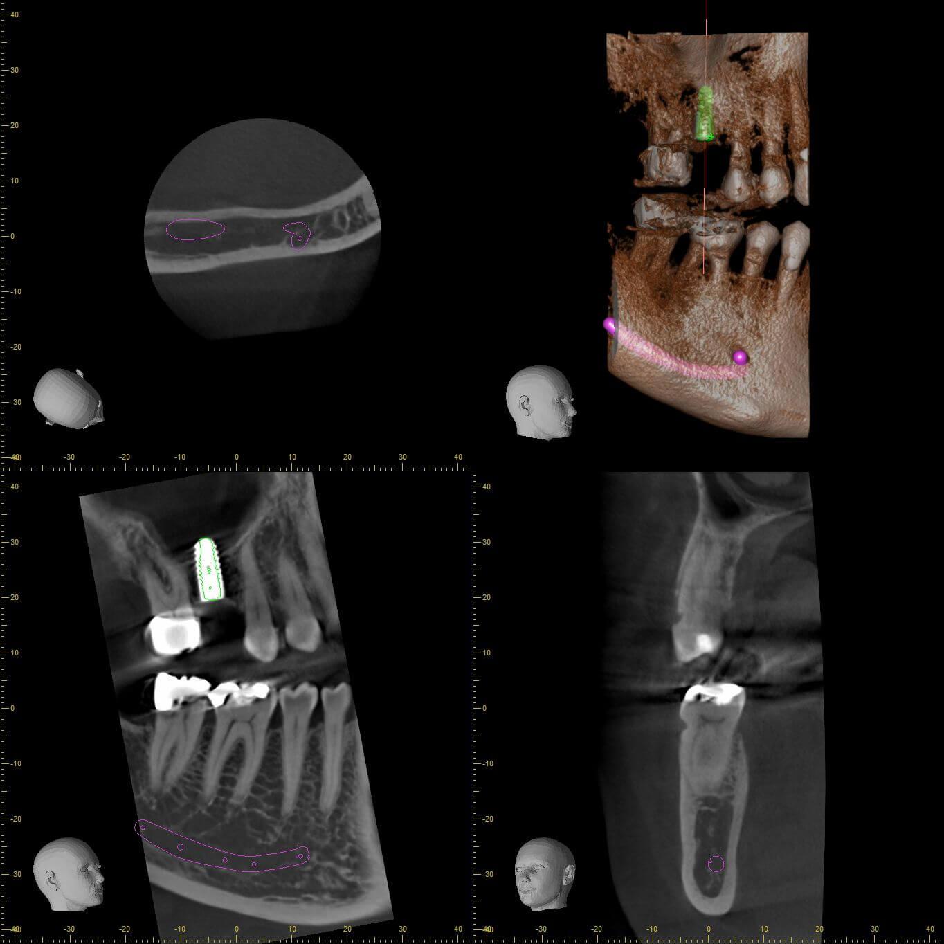 Veraviewepocs 3D Röntgen Üzerinde İmplant