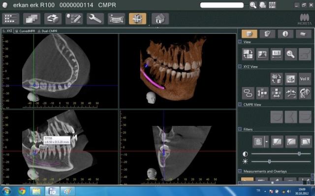 Veraviewepocs R100 İmplant Röntgeni
