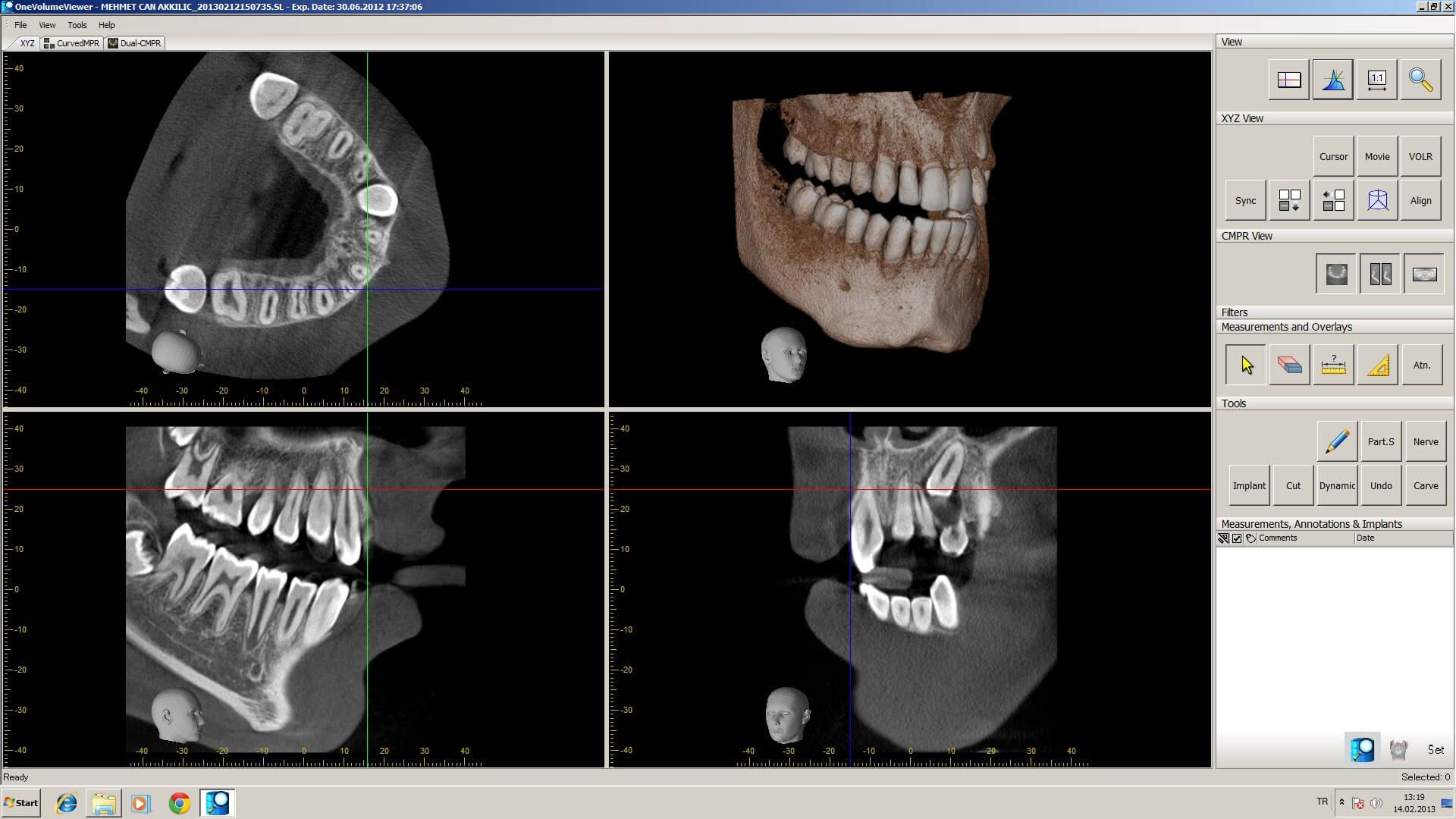 Veraviewepocs R100 Röntgen 6