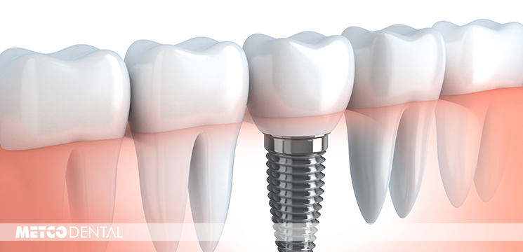 https://metcodental.com/wp-content/uploads/2017/09/implant-nedir-kapak.png