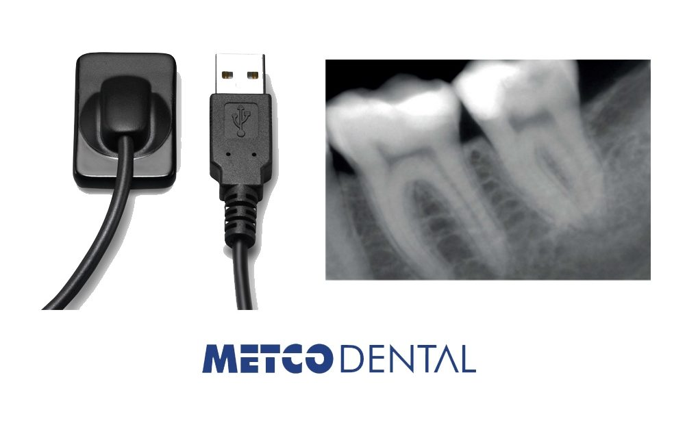 https://metcodental.com/wp-content/uploads/2018/09/RVG-1000x640.jpg