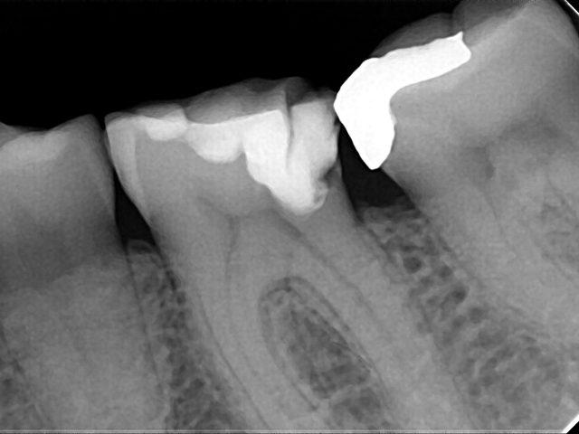 mediadent hamamatsu rvg