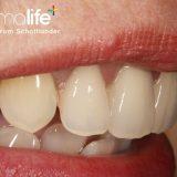 Protez Diş