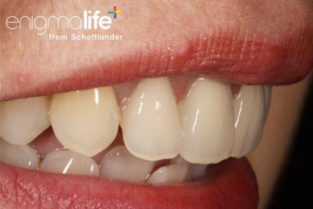 Protez Diş Nedir? Protez Diş Sistemi Nedir? | Metco Dental