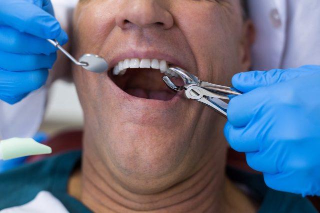 Diş Çürüğü Hakkında Bilmeniz Gerekenler | Metco Dental