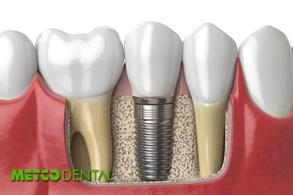 https://metcodental.com/wp-content/uploads/2020/09/Dental-Implantların-Avantajları-ve-Dezavantajları-Nelerdir.jpg