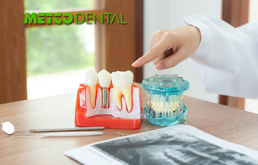 https://metcodental.com/wp-content/uploads/2020/09/Diş-Implantları-Nedir-1000x640.jpg