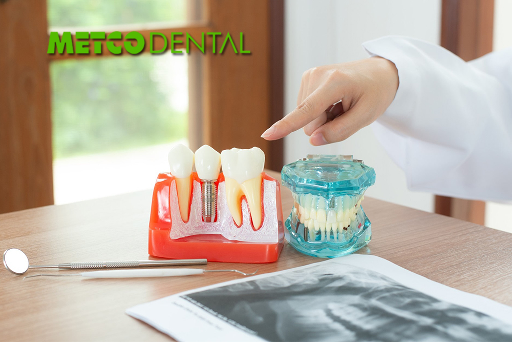 https://metcodental.com/wp-content/uploads/2020/09/Diş-Implantları-Nedir.jpg