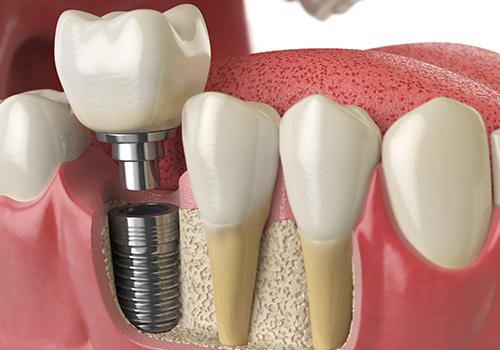 Kanal Tedavisi mi yoksa Implant mı?