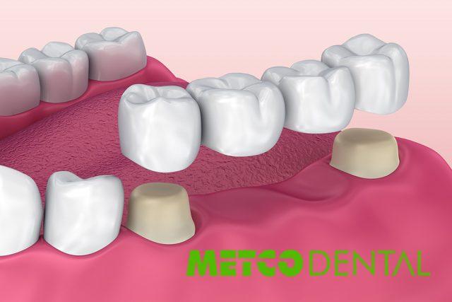 Diş Köprüsü Nedir? Kaç Çeşit Diş Köprüsü Vardır?